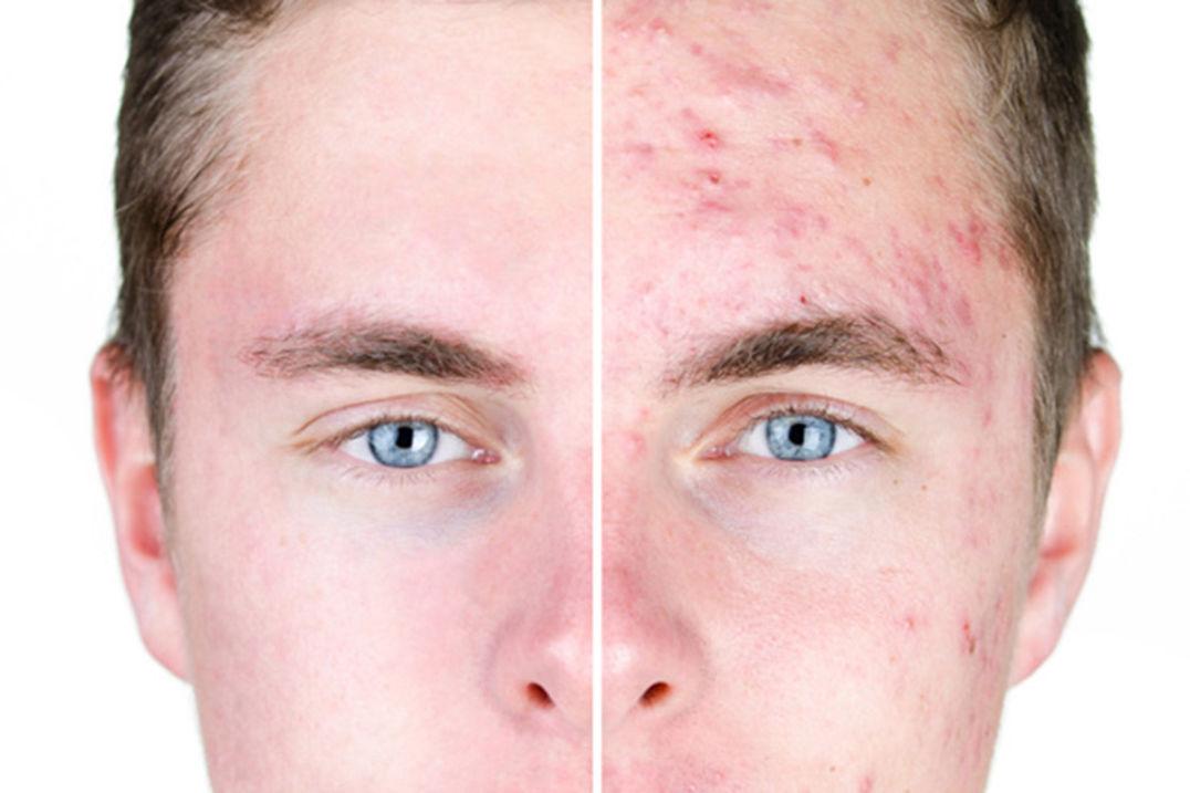 Akné v obličeji